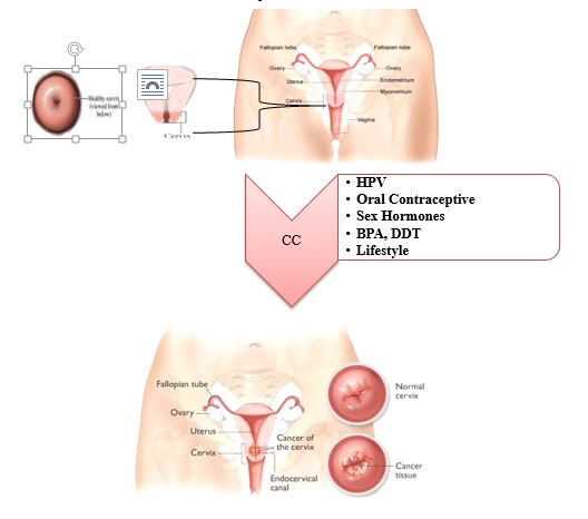 A new study biological role of hpv infection, oral contraceptive use, sex hormones and bisphenol A and increase rate cancer of cervical in libya